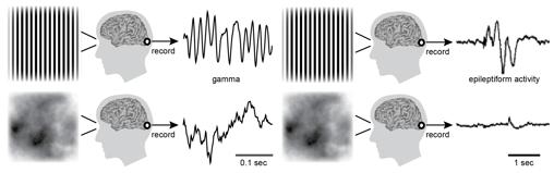 Los mismos patrones visuales que provocan un tipo específico de ondas cerebrales (oscilación gamma) en la corteza visual saludable también pueden desencadenar convulsiones en pacientes con epilepsia fotosensible. Superior izquierda: los patrones de rejilla de alto contraste inducen oscilaciones gamma en la corteza visual. Superior derecha: los mismos patrones que provocan oscilaciones gamma son también los más propensos a causar convulsiones en pacientes con epilepsia fotosensible. Abajo izquierda: los patrones de nubes no provocan grandes oscilaciones gamma y tampoco es poco probable que desencadenen actividad epiléptica.