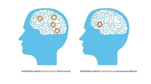 Actividad cerebral de una persona con o sin dislexia