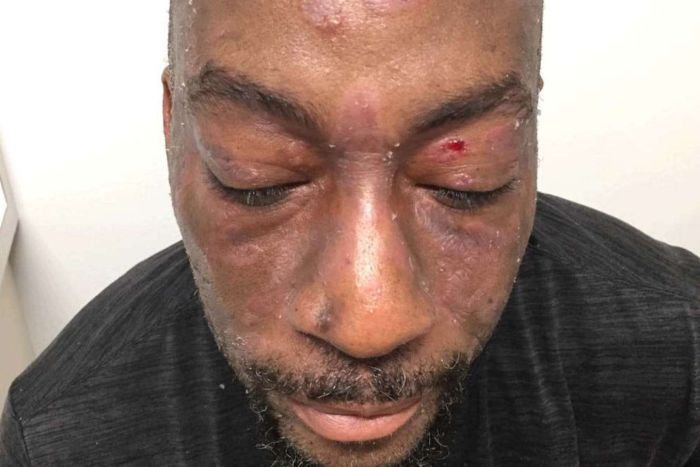 Dewayne Lee Johnson shows the lesions on his face and scalp.