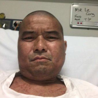 Cong Le lying in a hospital bed for his silicosis treatment