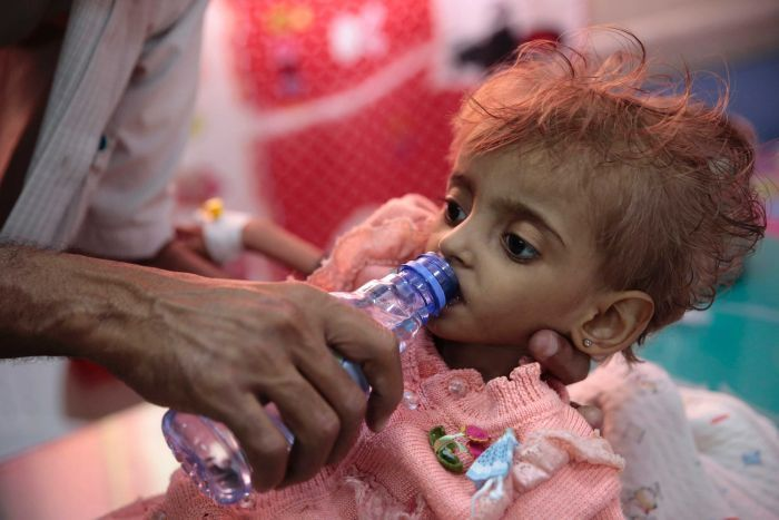 A malnourished Yemeni child wearing a pink knitted cardigan is given water through a bottle from her father.
