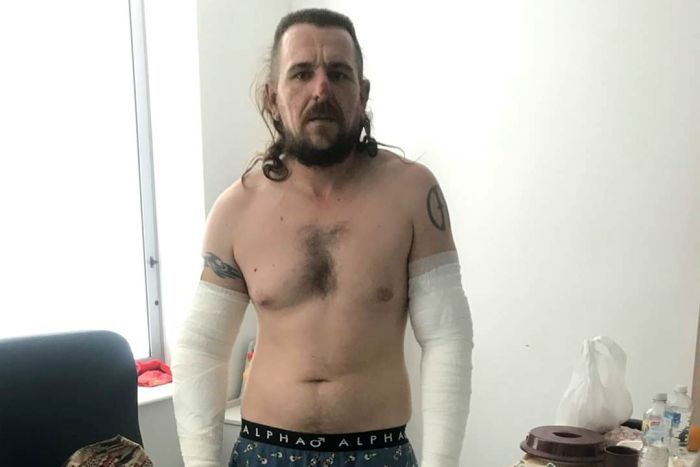 AL Bacon stands in a hospital room with bandages on both arms from fingers to under arm, left leg and right thigh.