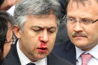 Turkish politician suffers blood nose