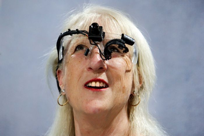 Dr Dianne Ashworth wearing a part of her bionic eye device