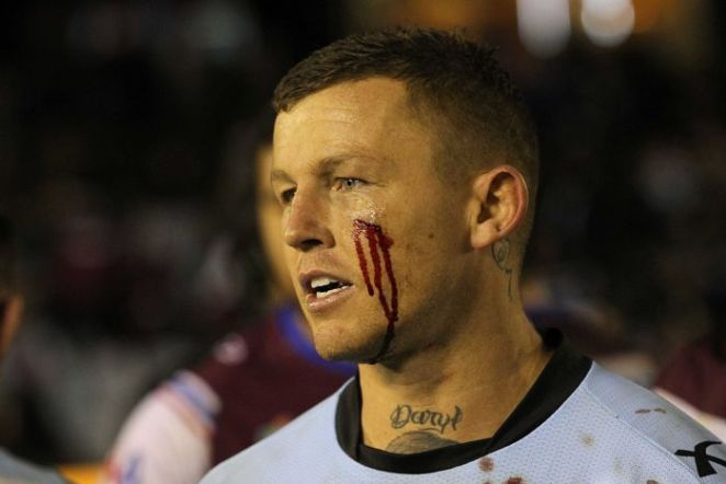 Controversial rugby league player Todd Carney with a bloody cheek during an NRL match in 2014.
