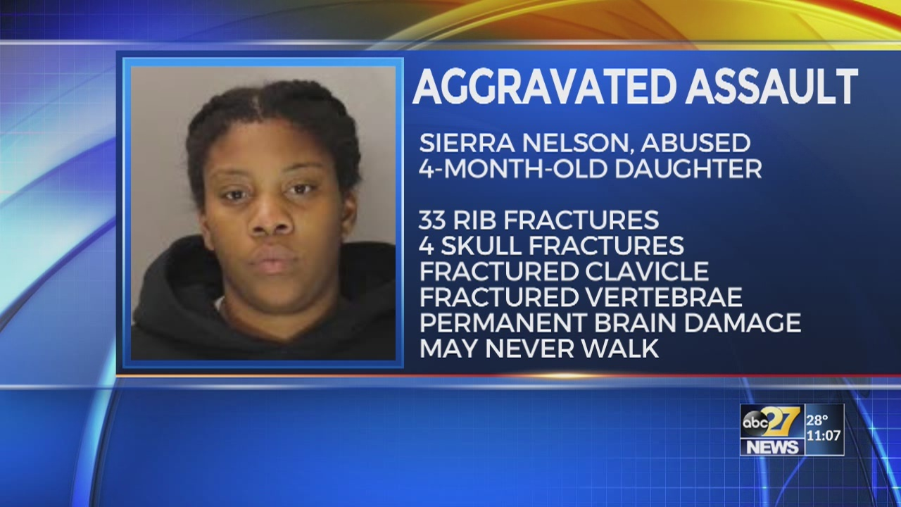 Dauphin County jury convicts woman after baby suffers life-altering injuries