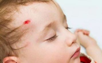 Lesões na cabeça do bebé provocadas por uma queda