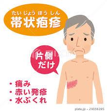 新潟 整体 帯状疱疹