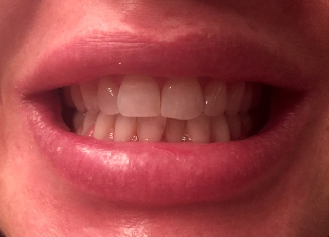 Crest Whitestrips after