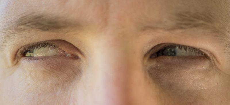 eyes of jealousy
