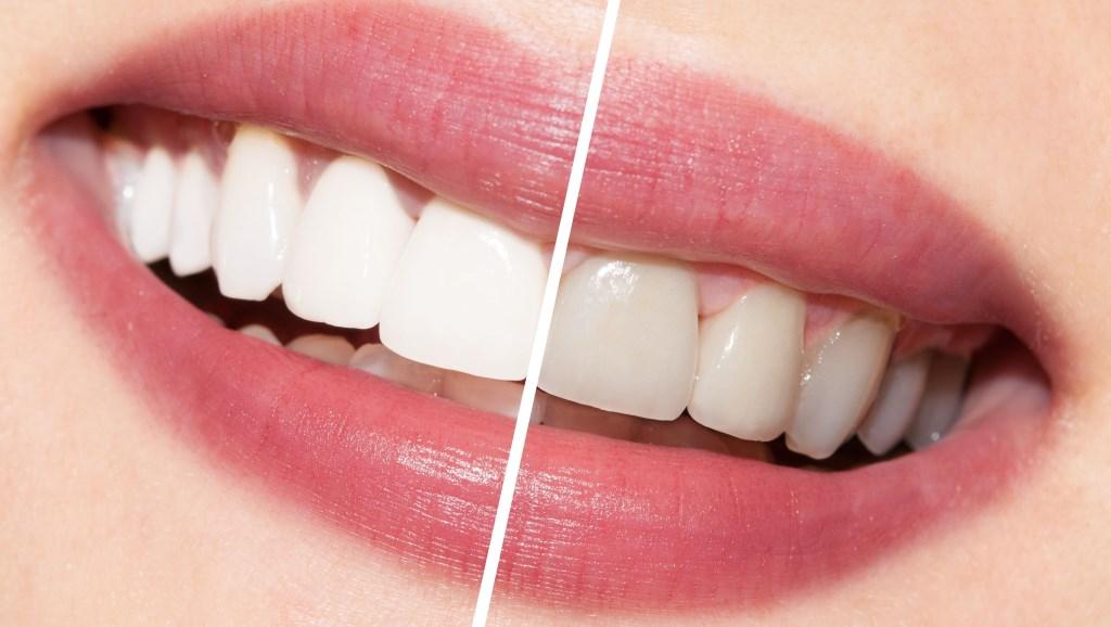 Teeth whitening result