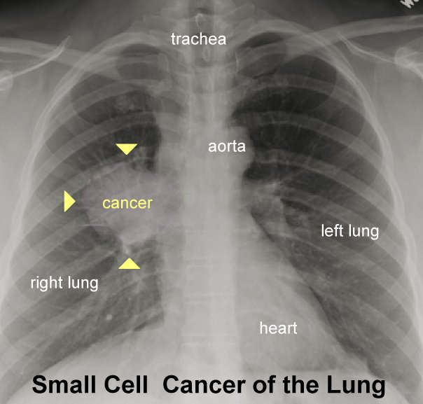 Image result for chest x-ray lung cancer