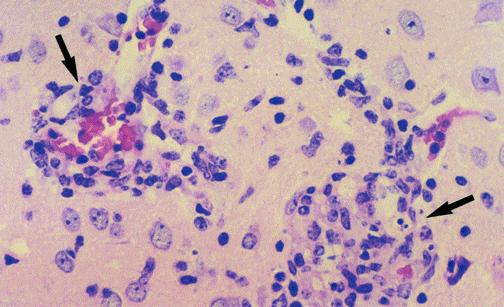 Encephalitozoon microscopio