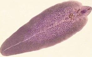 Fasciola, imagen microscópica