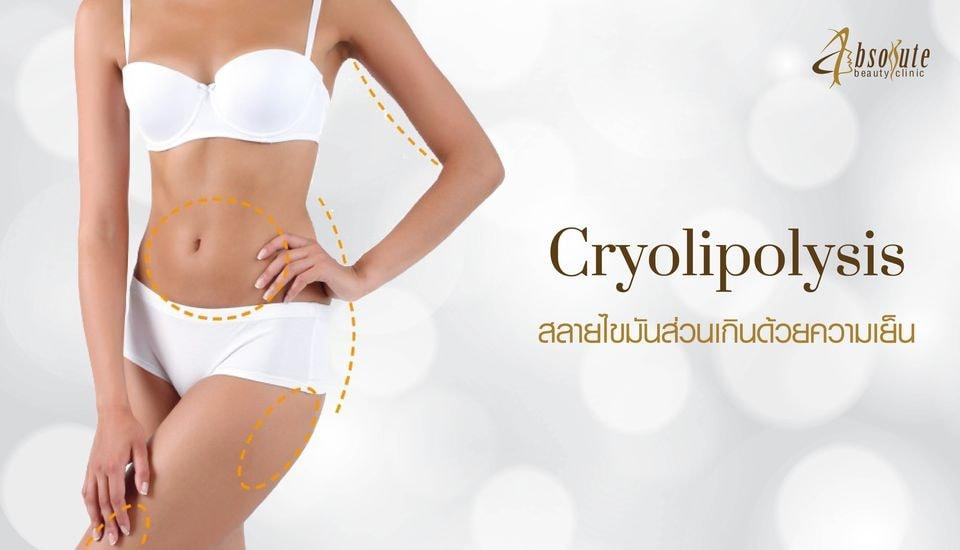 cryolipolysis สลายขไมัน