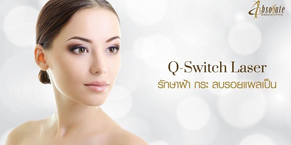 q switch laser