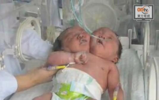Bimba nata con due teste in Cina (2)