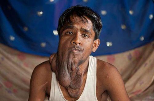 Uomo elefante Indiano - Lalit Ram