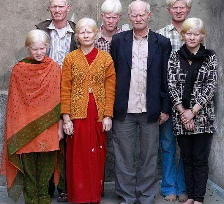 Famiglia albina indiana