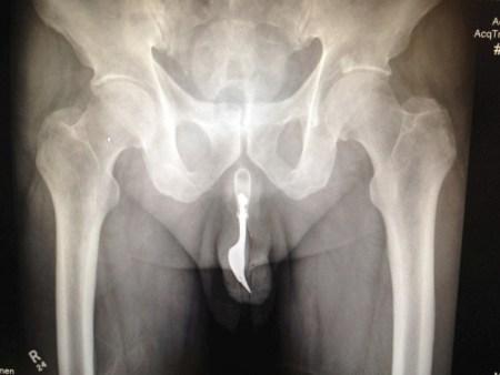 Pensionato corre in ospedale con una forchetta nel pene