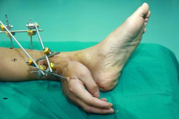 Salvata una mano mozzata dopo averla attaccata alla caviglia (1)
