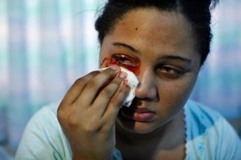 Delfina Cedeno, la ragazza che piange e trasuda sangue (2)