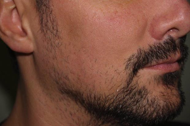 Ricorrono al trapianto di barba per essere più hipster (4)