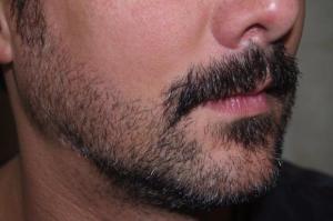Ricorrono al trapianto di barba per essere più hipster (3)