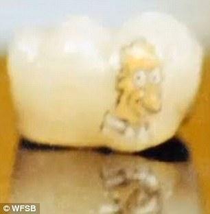 Tatuaggi sui denti (3)