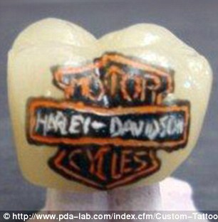 Tatuaggi sui denti (10)