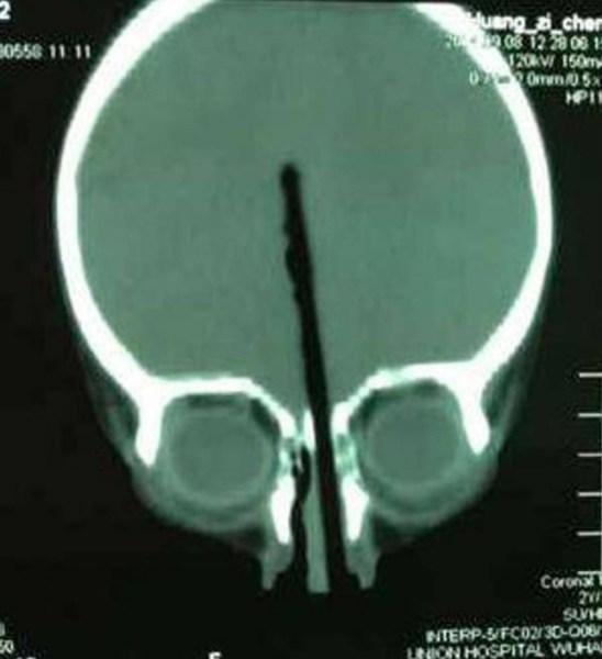 2 anni, si infila un bastoncino su per il naso fino al cervello e sopravvive (1)
