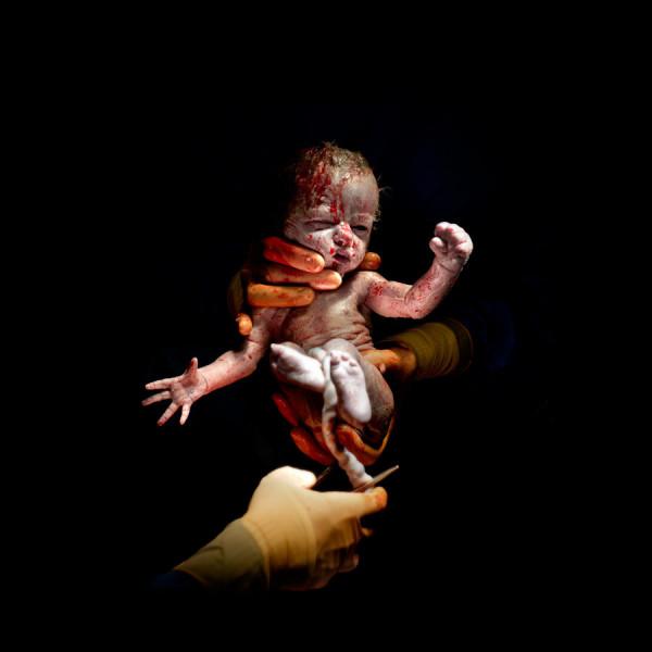 Christian Berthelot cattura i primi attimi di vita dei neonati (8)