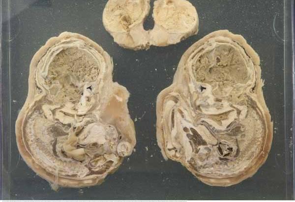 Trovato un feto di 50 anni nell'addome di una 92enne