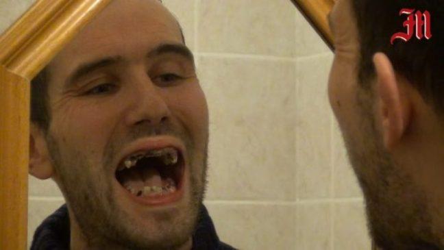 denti-marci-bibite-gassate