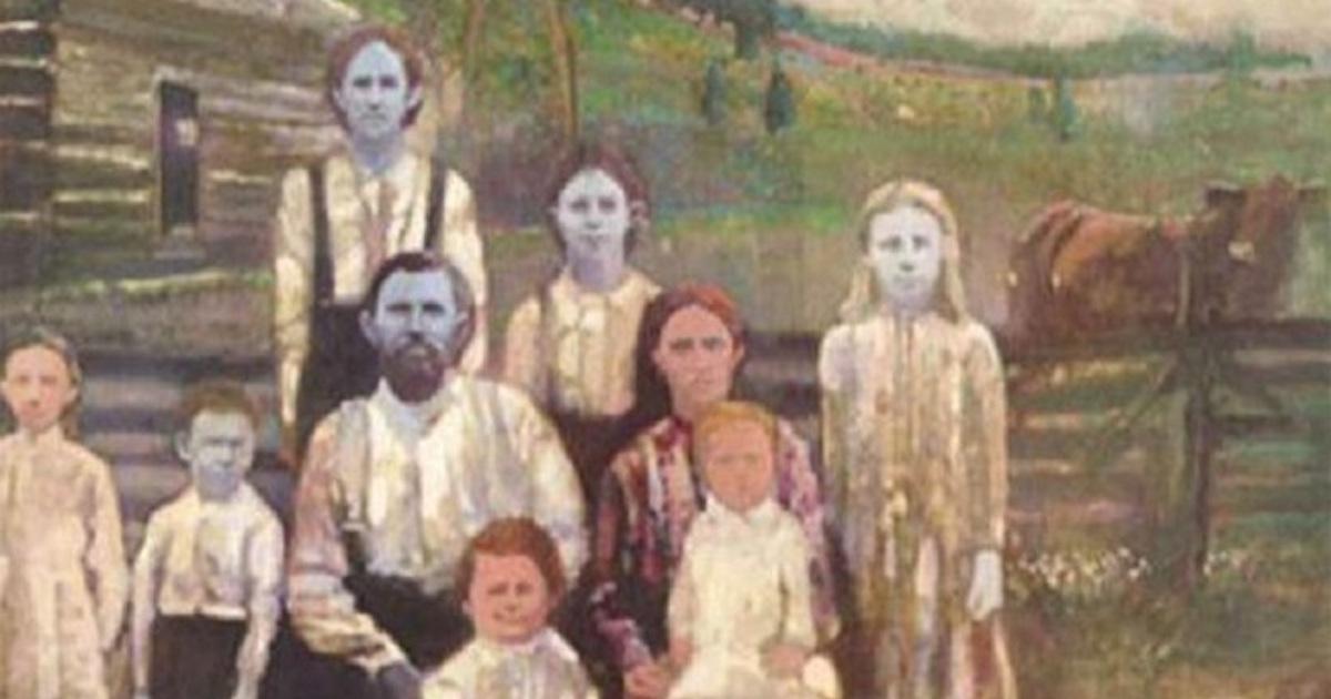 Blue Fugates, la famiglia dalla pelle blu