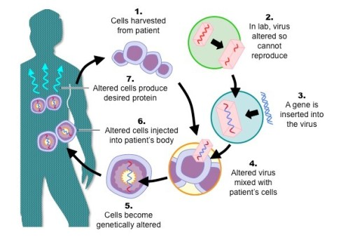 gene_therapy_med
