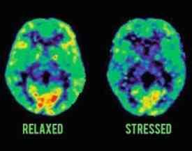 Stresli Beyin