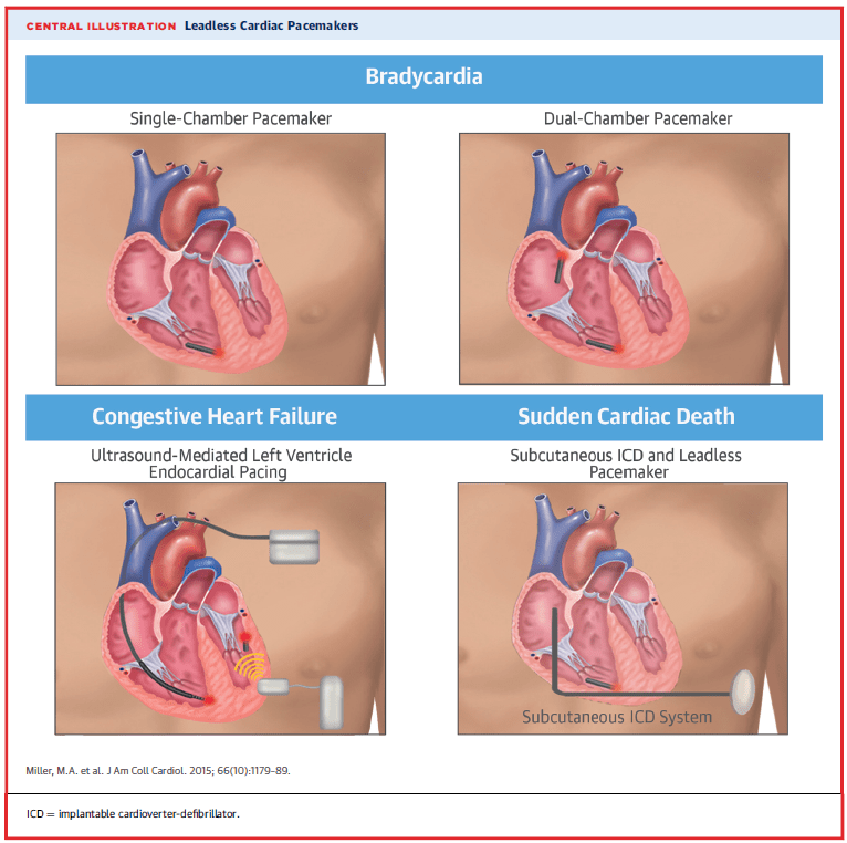 Permanent Leadless Cardiac Pacing - American College of ...