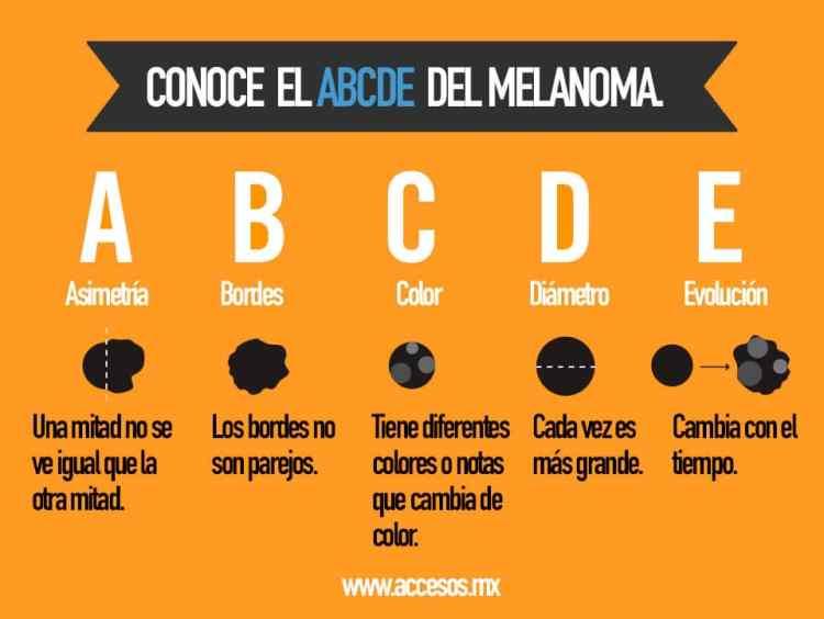 melanoma infografia