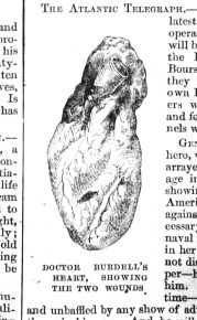 Dr. Burdell's Heart, Showing the Two Wounds