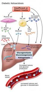 Cetoacidósis Diabética