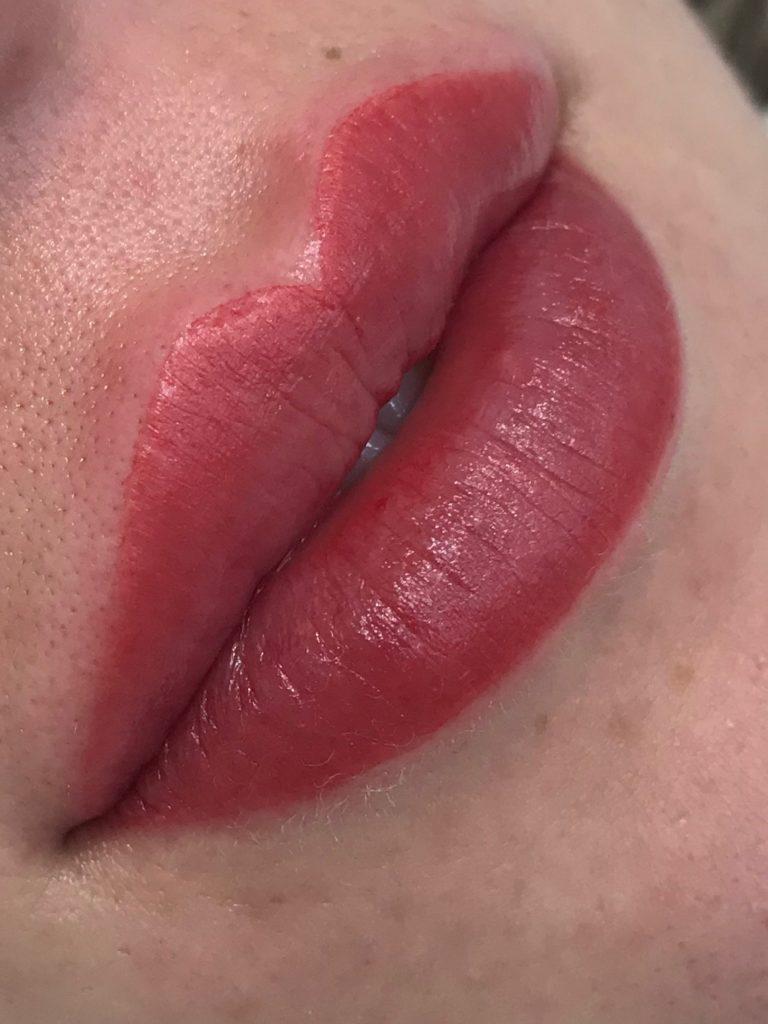 sweet lips sallus estetica