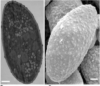 Microfotografías de granos de polen tomadas con TEM (izquierda) y SEM (derecha). La barra blanca representa 1 micrómetro. Tomada de http://www.plospathogens.org/article/info%3Adoi%2F10.1371%2Fjournal.ppat.1002086