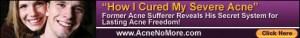Acne-no-more-book-review