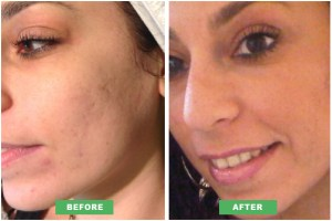 Chemical-Peels-For-Acne-Scars