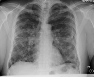 The Sarcoidosis Diagnosis