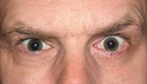 Stop Sneezing Into My Eyeballs! • A Crock of Schmidt