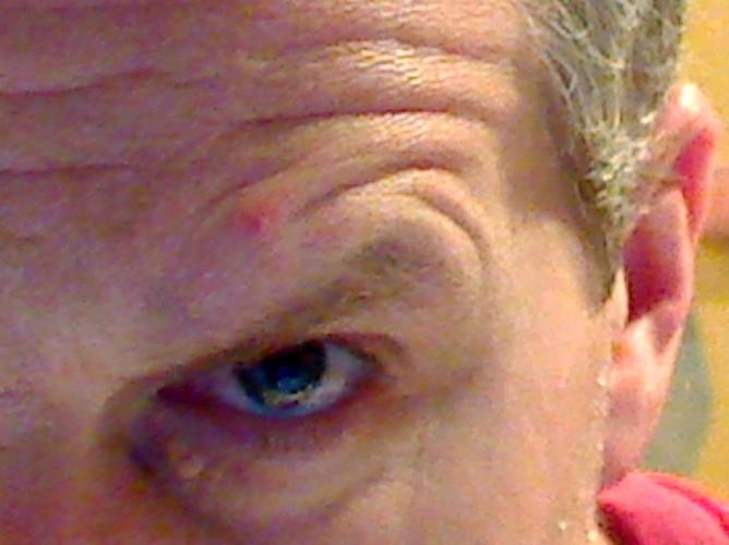 Pimple Above Eye