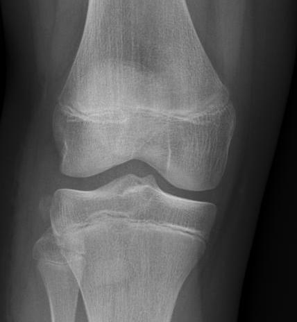 segoid fracture
