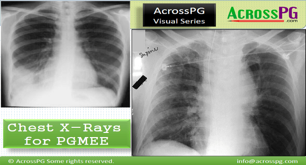Chest X Ray